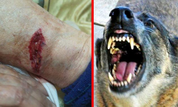Bătrână mușcată grav de un maidanez pe o stradă din Constanța. Femeia abia apucase să iasă din scara blocului