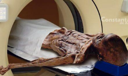 Pacient mumificat, găsit într-un RMN defect din Spitalul Județean. I-au zis să așepte acolo până vin băieții de la tehnic