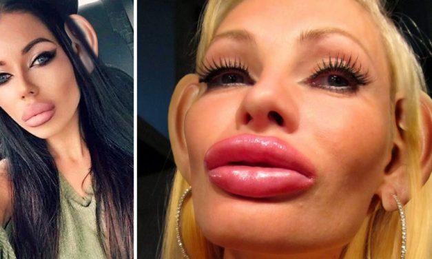"""Devastator! Româncele botoxate, clăpăuge din cauza măștii. Medic: """"Buzele mărite întind masca și trag de urechi"""""""